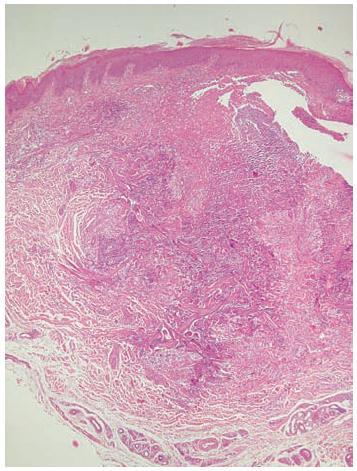 Rozsáhlé mapovité bazofilní nekrózy koria (HE, původní zvětšení 40krát)
