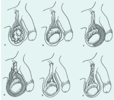 Věkové rozložení seminomů (a) a germinálních nádorů neseminomového typu (b) podle materiálu Onkologické kliniky 1. LF UK a TN. Vrchol výskytu NSGCT je oproti seminomům posunut o jedno decénium k mladším věkovým kategoriím.