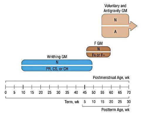 Vývojová trajektorie. (Převzato z Ferrari F, Cioni G, Einspieler Ch, et al. Cramped synchronized general movements in preterm infants as an early marker for cerebral palsy. Arch Pediatr Adolesc Med 2002; 156 (5): 460–467 [10]. Neupraveno.)