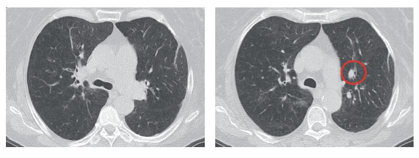CT skeny s regresí původní infiltrace vpravo, kde jen reziduum v oblasti hilu, v horním laloku nález zcela zregredoval a vlevo došlo ke zmenšení metastázy