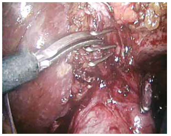Ligace a střižení a. cystica, ductus cysticus ligován<br>