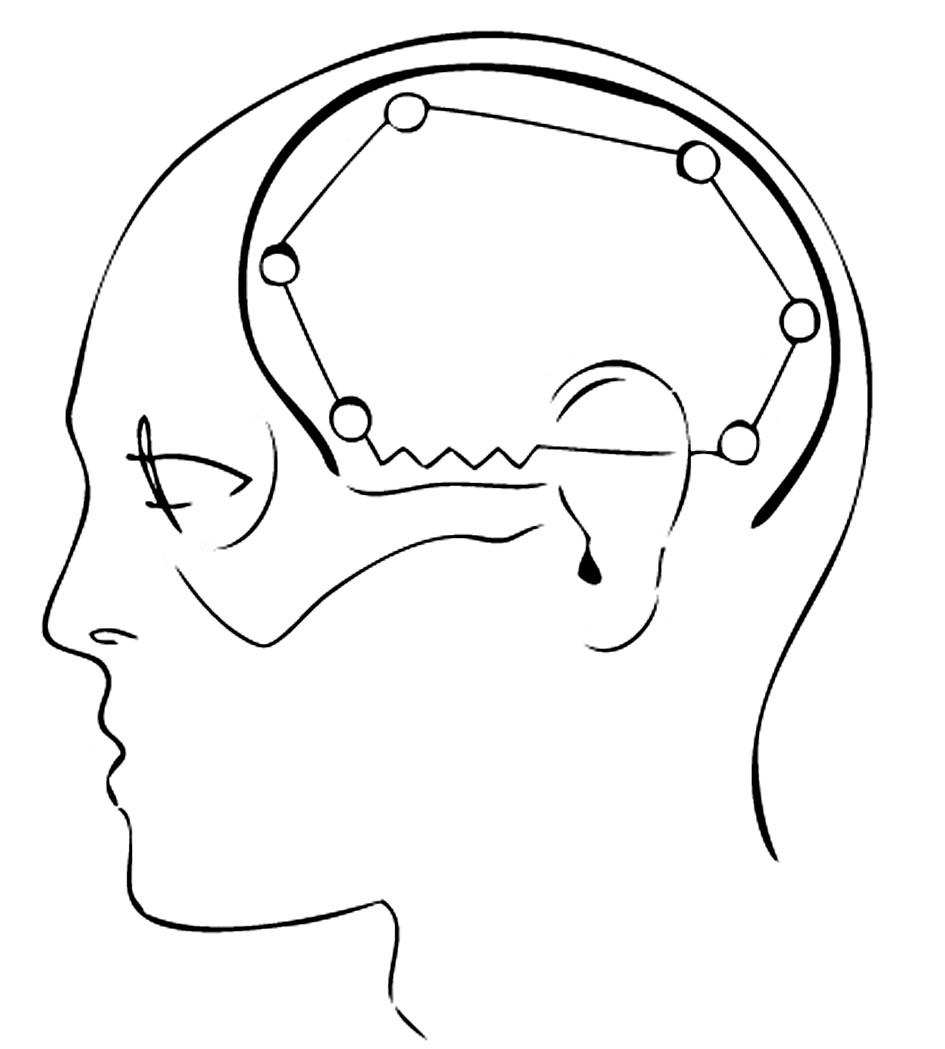 """Kožní řez tvaru """"omega"""" Pic. 5. """"Omega"""" shaped skin section"""