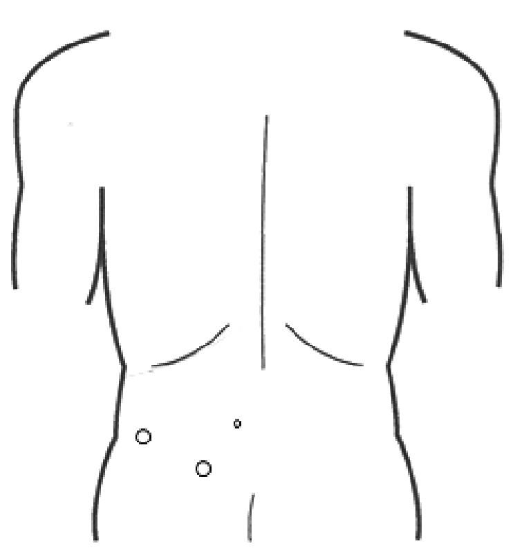 Obr. 1b: Pozice trokarů Fig. 1b: Positioning of trocars