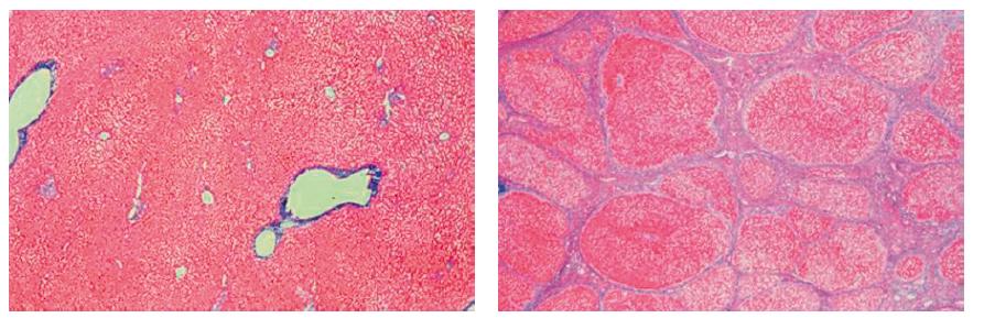 Mikroskopický obraz jater (vlevo normální játra, vpravo cirhotická játra)