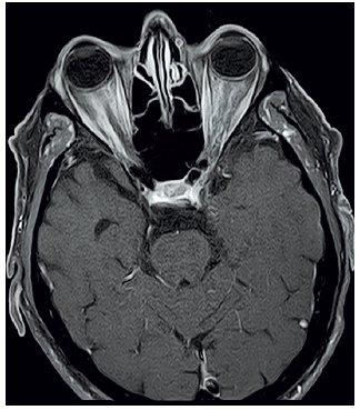 MRI očnic T1 vážený obraz, FSAT, axiální řez, kontrast Dotarem – mírný edém zrakového nervu vpravo s opacifikací