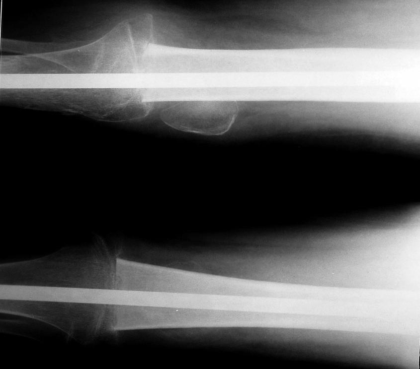 Pacient s osteosarkomem po chirurgickém výkonu: artrodéza kolene se štěpem.