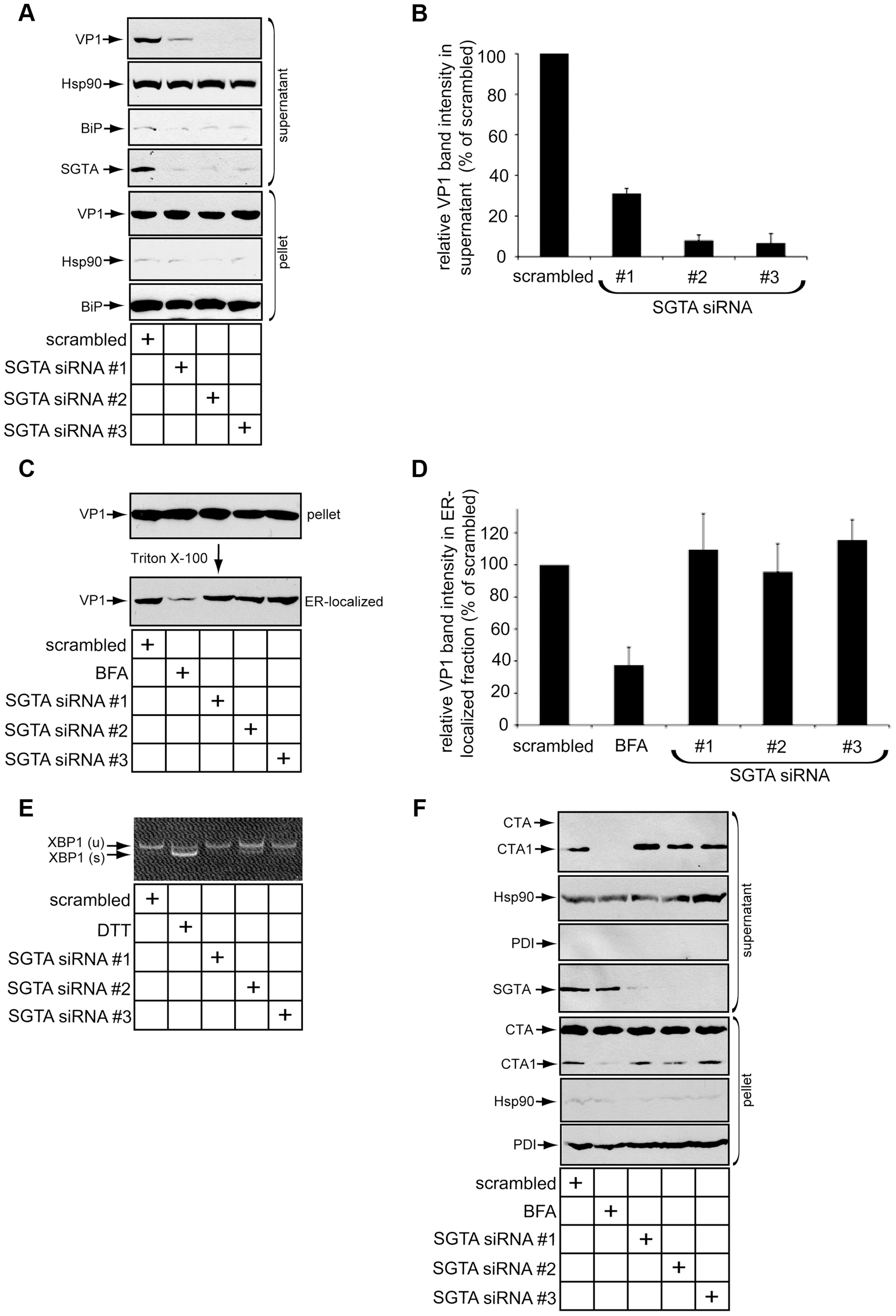 SGTA knockdown blocks viral ER-to-cytosol transport.