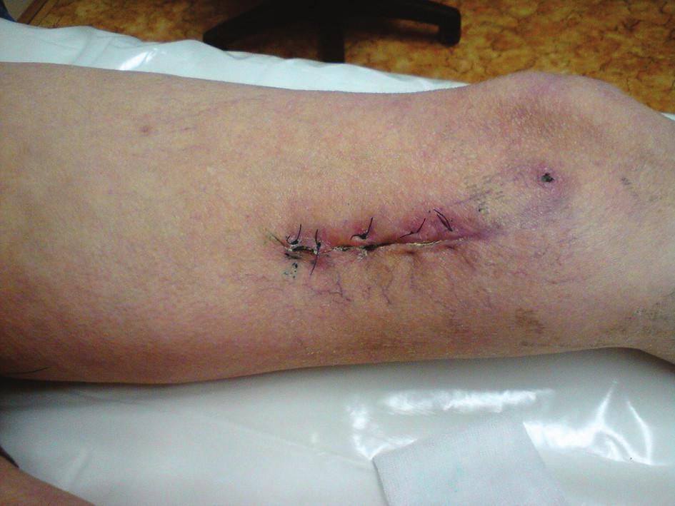Stav končetiny při propuštění Fig. 9: Condition of the limb at discharge
