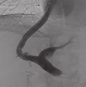 Třiapadesátiletá žena s opakovaným krvácením ze subkardiálních varixů, těžko stavitelné endoskopickou léčbou. Současně přítomna významná portální gastropatie. 1A. CT portografie zobrazuje portální žílu a její lokalizaci vzhledem k okolnímu jaternímu parenchymu. 1B. Po punkci pravé větve portální žíly zavedeným katetrem provedena přímá portografie a změřen tlakový gradient. 1C. K výběru délky dedikovaného stentgraftu je nutné změřit délku intraparenchymového kanálu. Portografie v pravé přední šikmé projekci provedená kalibračním katetrem zobrazuje nezkresleně portální bifurkaci a vzdálenost místa punkce od ní, zároveň je zobrazena dolní dutá žíla. Ve vena gastrica brevis je patrna náplň akrylátovým lepidlem. 1D. Stav po implantaci stentgraftu, který zkratuje tok z pravé větve vena portae do pravé síně. Portosystémový gradient klesl z 18 na 10 mmHg. Fig. 1. A 53-year-old female with repeated bleeding from subcardiac varices, which was difficult to stop endoscopically. Also significant portal gastropathy was present. 1A. CT portography shows portal vein and its localisation with a view of the surrounding liver parenchyma. 1B. After the puncture of the right branch of portal vein with the introduced catheter, direct portography was made and pressure gradient measured. 1C. To determine the length of the dedicated stent-graft it is necessary to measure the length of intraparenchymal channel. The portograpy in the right anterior oblique projection carried out by the calibration catheter shows undistorted portal bifurcation and its distance from the puncture site. Also the inferior vena cava is displayed. The filling with acrylate glue is apparent in short gastric vein. 1D. Condition after the implantation of stent-graft which shortens the flow from the right branch of the portal vein to the right atrium. The portosystemic gradient decreased from 18 to 10 mmHg.