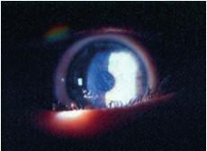 Cornea verticillata pri m. Fabry