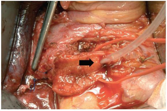 Peroperační nález – otevřený pahýl cystiku. Pinzeta ukazuje stěnu transligovaného pseudoaneuryzmatu, šipka drén ve žlučových cestách.