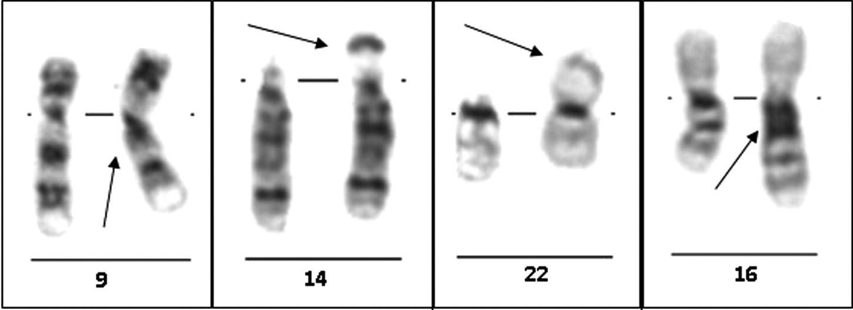 Vybrané varianty lidského karyotypu – standardní cytogenetické vyšetření: G-pruhování, zleva doprava: inv(9)(p12q13), 14ps+, 22pstk+ a 16qh+