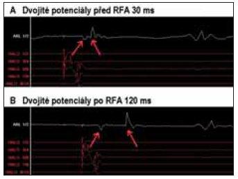 Změny lokálního elektrogramu – disociace dvojitých potenciálů před RFA (A) a po úspěšné RFA (B) mezery v lineární lézi na kavotrikuspidálním istmu.