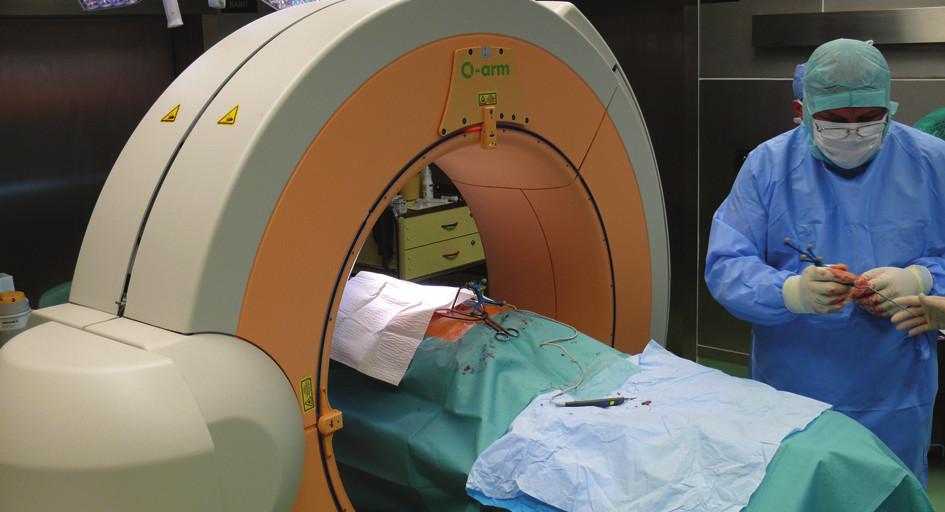 Umístění O-ramena při peroperačním CT vyšetření a identifikace speciálních operačních nástrojů navigační stanicí před odsunutím O-ramena mimo operační stůl Fig. 1: Position of the O-arm during intraoperative CT and identification of special instruments by the navigation station