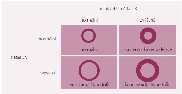 Variabilita změn geometrie levé komory při hypertenzi.