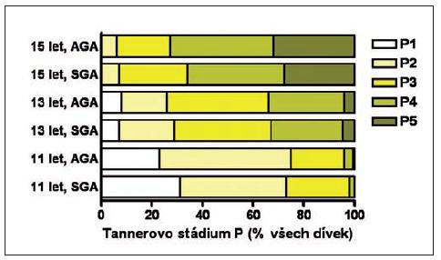 Tannerovo stadium vývoje pubického ochlupení (P) u dívek narozených AGA a SGA ve věku 11, 13 a 15 let podle hodnocení praktickým lékařem pro děti a dorost.