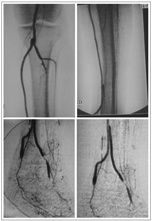 Angiografie – pedální bypass a volný lalok přenesen v druhé době, napojení žilním štěpem.