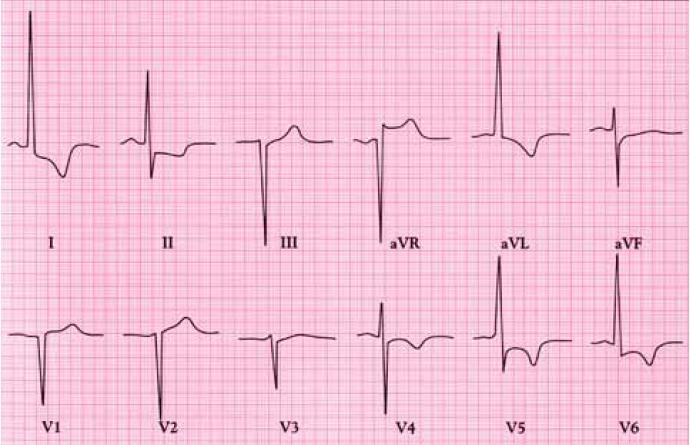 EKG u pacienta s koarktací aorty. Vysoké voltáže komplexů QRS a změny ST-T ve svodech I, II, aVL a V4-6 značí hypertrofii levé komory. NB: 1mV ve V4-6 = 0,5 cm