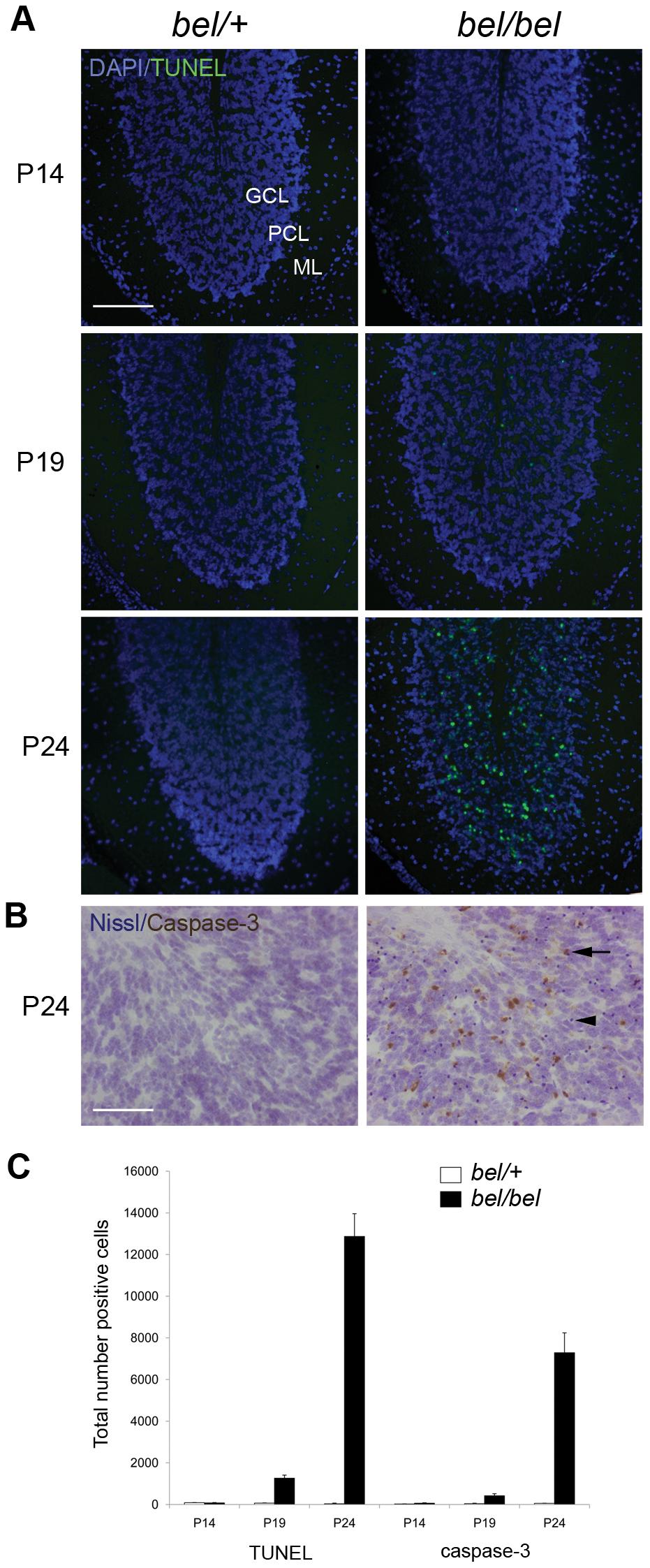 Progressive neurodegeneration in the <i>bel</i> mutant.