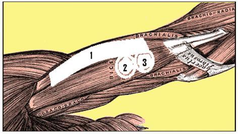 Umístění tapu (1) a elektrod (2, 3) vzhledem k průběhu vláken m. biceps brachii.