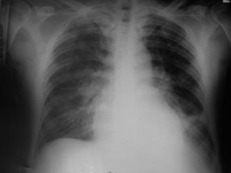 RTG srdce a plic před terapií.