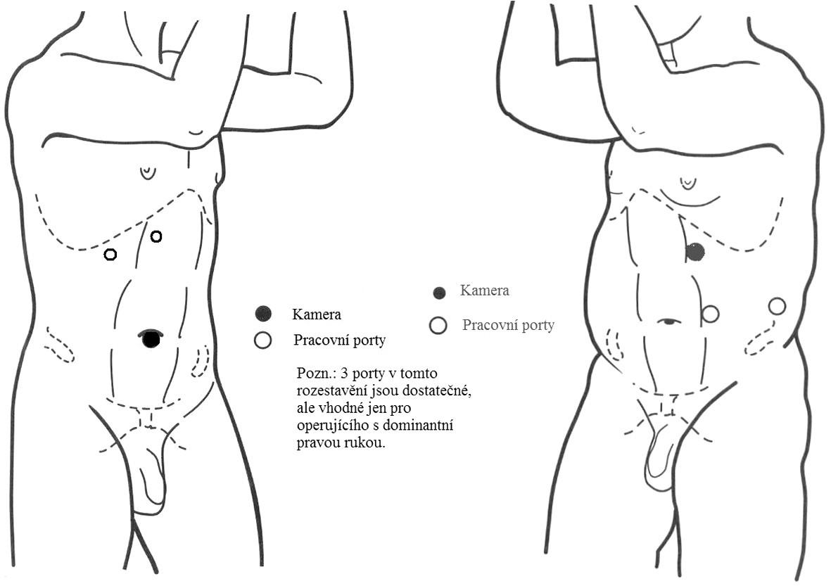 Rozestavení portů u laparoskopické pyeloplastiky Fig. 1. Placement of ports in laparoscopic pyeloplasty