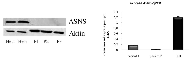 Protein ASNS detekovaný metodou Western Blot u buněčné linie Hela. U klinických vzorků nebyla detekce úspěšná, P1, P2 a P3 – označení pro pacientské vzorky. Bazální hladiny genu pro ASNS stanovené pomocí qRT-PCR u linie REH a dvou klinických vzorků.
