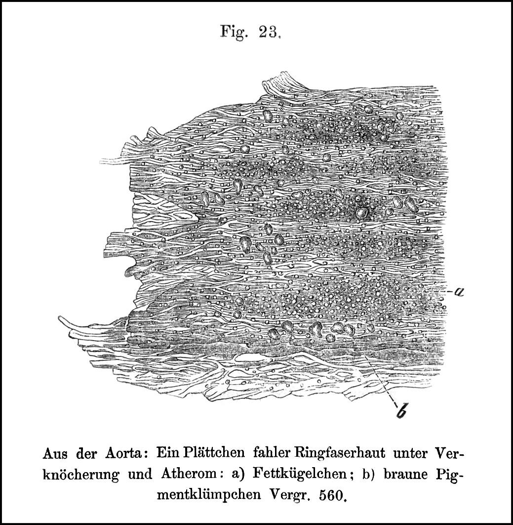 Médie pod ateromovým plátem – tukové kapénky (a) a zrnka hnědého pigmentu (b)