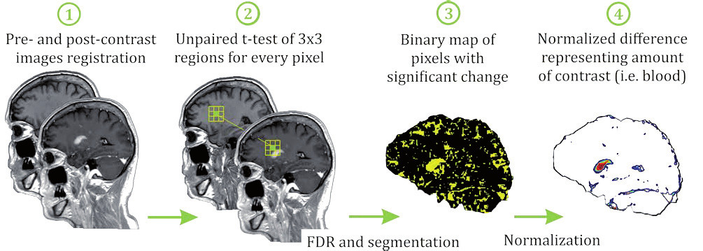 Fig. 1: Method summarization. (1) Pre and post contrast images are registered. (2) T-test of corresponding regions is performed (3) resulting in binary significance map where areas with significant changes are highlighted. (4) Difference of intensities in these areas is calculated and eye-sinus normalized.