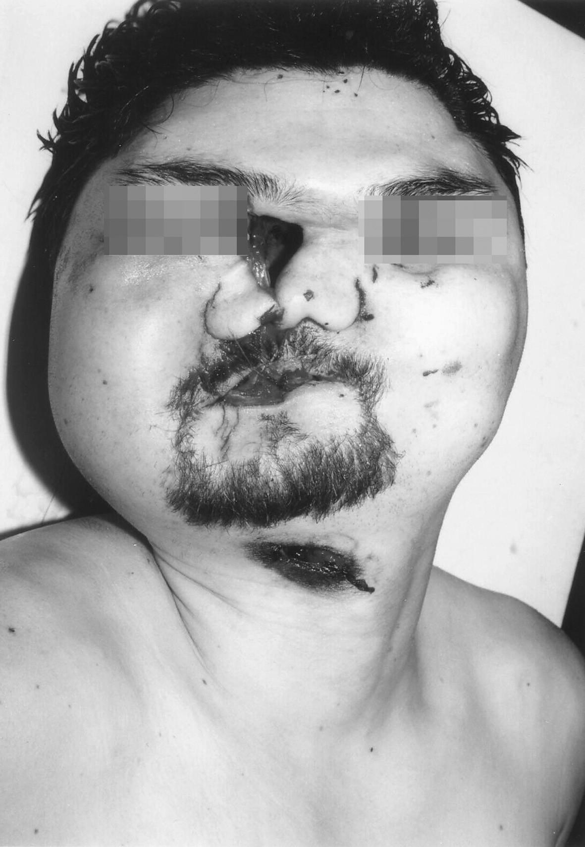Sebevražda brokovnicí (ráž 16 x 70) – průstřel hlavy při střelbě z absolutní blízkosti. Vstřel pod bradou. V okolí úst, kořene nosu a očních víček četné trhliny měkkých tkání vzniklé vlivem expanze spalných plynů.