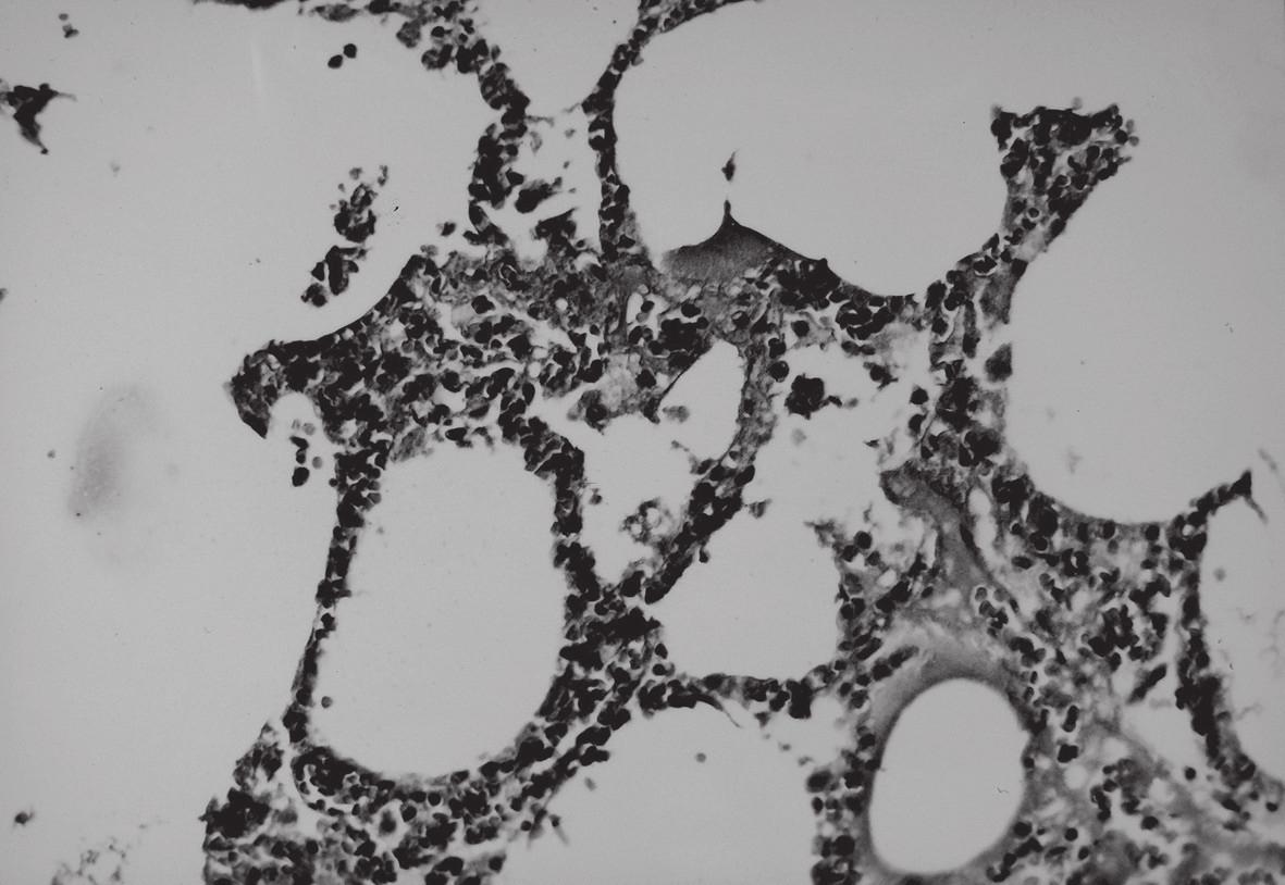 Mikroskopický obraz pľúcneho tkaniva počas pôsobenia vákua; HE, 250x.