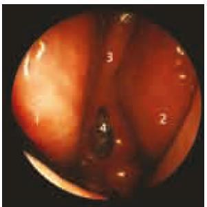 Endoskopický pohled do dutiny nosní čtyři týdny po transnazální exstirpaci adenomu hypofýzy. 1: střední skořepa vpravo, 2: střední skořepa vlevo, 3: septum nosní (část zadní části septa byla při operaci resekována), 4: otevřená klínová dutina