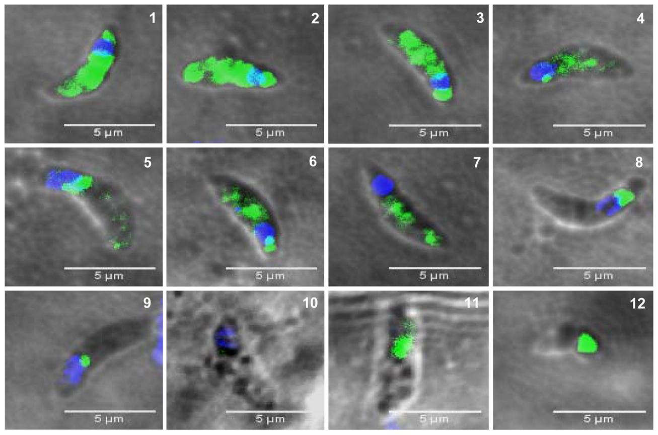 The presence of TgNF3 in the cytoplasm of dormant bradyzoites is accompanied by profound changes in parasite's nucleus.