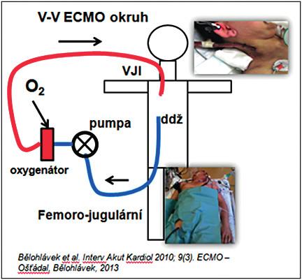 VV ECMO (femoro-jugulární okruh – přes kanylu cestou v. femoralis zavedenou do dolní duté žíly je odebírána krev do mimotělního okruhu, oxygenovaná a navracena cestou jugulární žíly). VV ECMO – venovenózní extrakorporální mimotělní oběh, VJI – vena jugularis interna, ddž – dolní dutá žíla