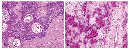 Místní extenzívní mineralizace chondroidních resp. osteoidních hmot někdy úplně znemožňovala správné rozpoznání jejich skutečné diferenciace. A - chrupavka; B - osteoid (HE, 100x).
