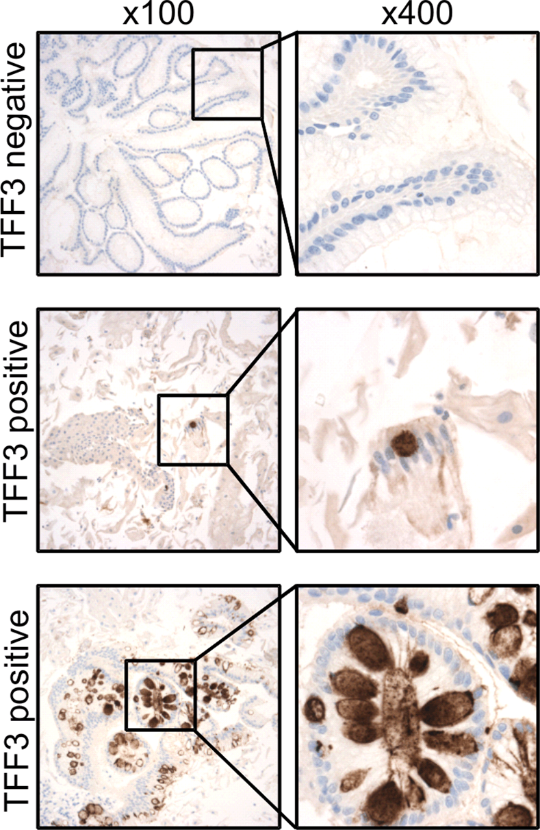 TFF3 immunohistochemical staining of Cytosponge samples.