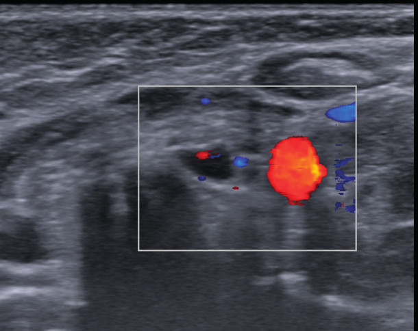Ultrasonografické vyšetrenie prištítnych teliesok.  Fig. 1. Ultrasonography of parathyroid glands. A. Hypoechoic oval mass 5.1 x 4.5 mm of size under the left lobe of thyroid gland; appearance typical for lymph node. B. Color-doppler shows central hilar vascularization.