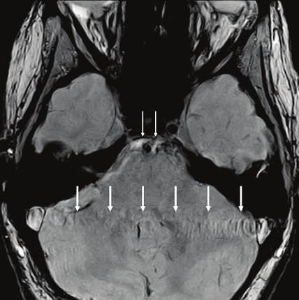 Artefakty prúdenia. V priečnom MR obraze sú v smere fázového kódovania (sprava - doľava) artefakty prúdenia spôsobené pulzačným prúdením krvi v sinus sigmoideus. Malé artefakty prúdenia sú aj z a. basilaris [5].