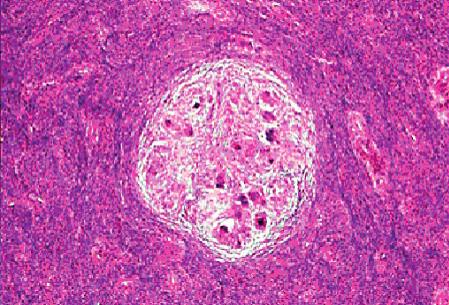 Sarkoidní granulom dělohy (archivní snímek MUDr. Žurkové)