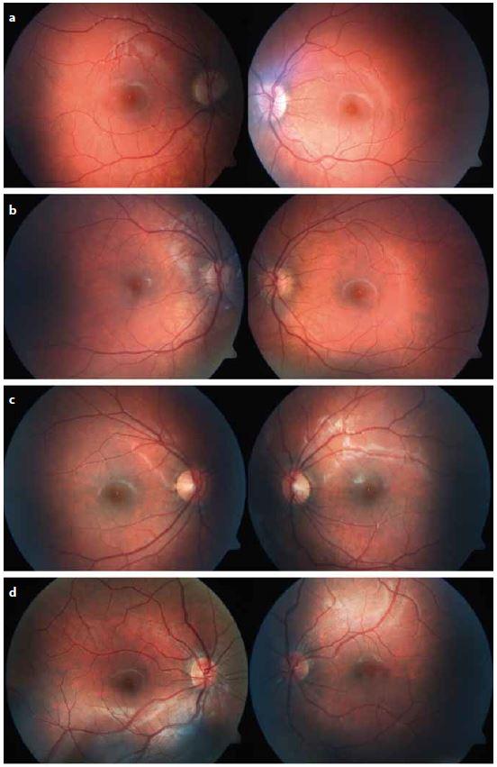 Biomikroskopický nález na očním pozadí fotograficky zdokumentovaný pomocí fundus kamery u čtyř dívek s poklesem zrakové ostrosti nejasné příčiny.