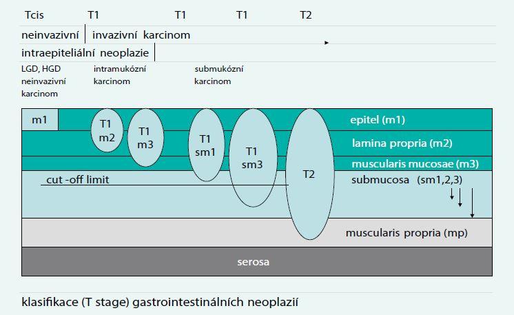 TNM klasifikace a možnosti endoskopické resekce. Upraveno podle [6]