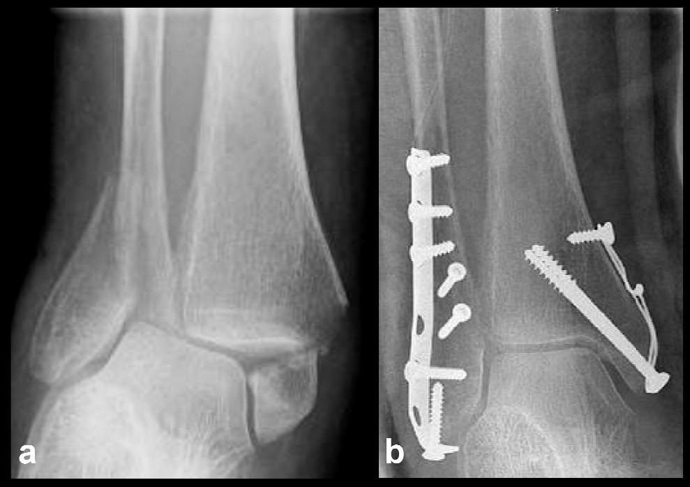 Osteosyntéza vnitřního kotníku kombinací tahových šroubů a cerkláže a – stav před operací, b – stav po operaci