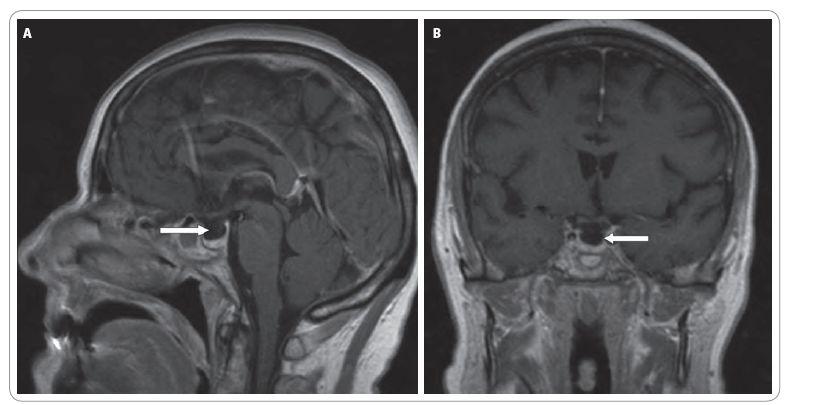 A. Sagitální řez MRI mozku. B. Koronární řez MRI mozku.