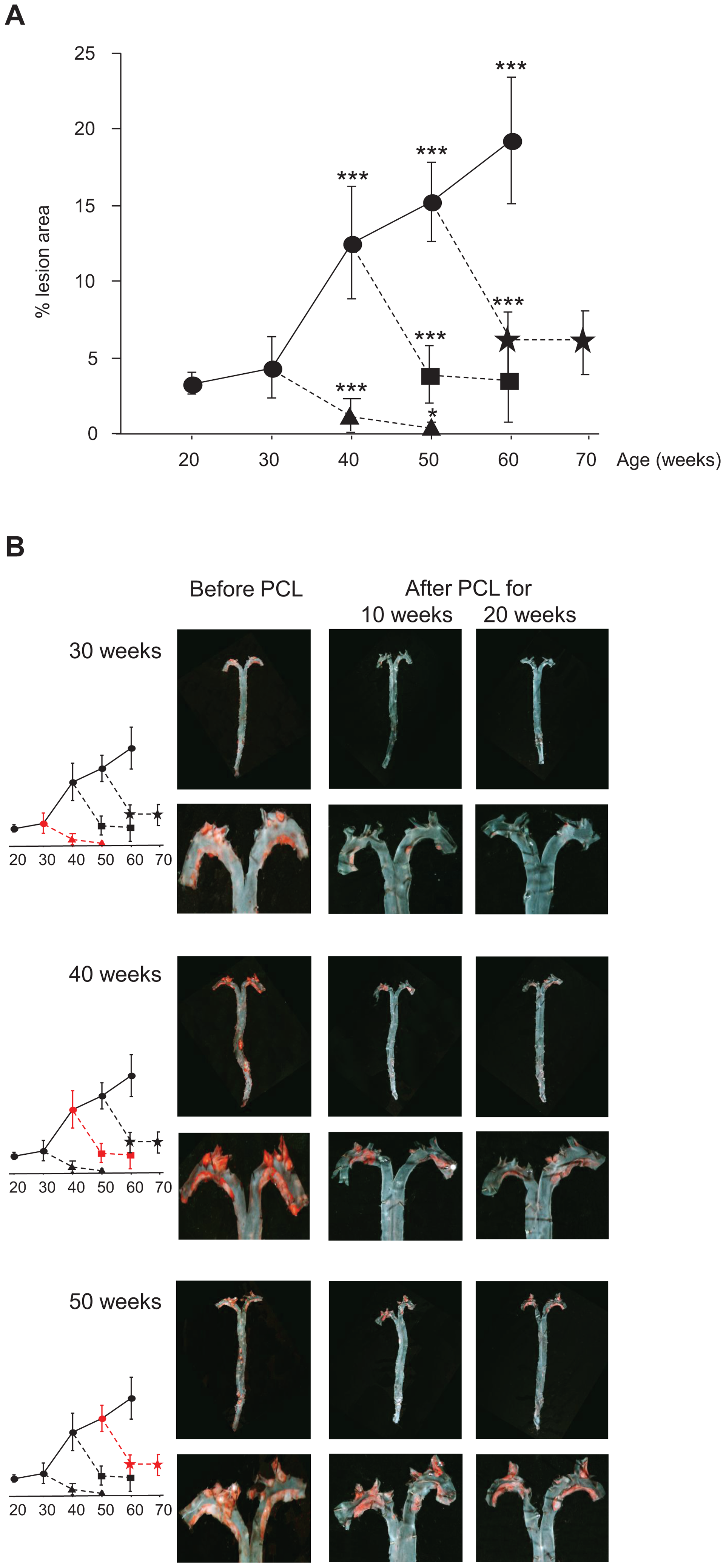 Atherosclerosis progression in <i>Ldlr<sup>−/−</sup>Apob</i><sup>100/100</sup><i>Mttp</i><sup>flox/flox</sup> mice and regression in <i>Ldlr<sup>−/−</sup>Apob</i><sup>100/100</sup><i>Mttp</i><sup>Δ/Δ</sup> mice.