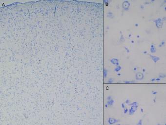 Obr. 2a. Neokortex (A) v okolí hemangiomu se ztrátou stratifikace, s hypercelularitou v I. vrstvě, transkortikálně s velkými neurony, s immaturními neurony ve spodní části kortexu (B), místy s neuronálními klastry (C). Změny odpovídají FCD, typ IB (Palmini). Barvení toluidinovou modří, zvětšení 40× (A), 400× (B, C).