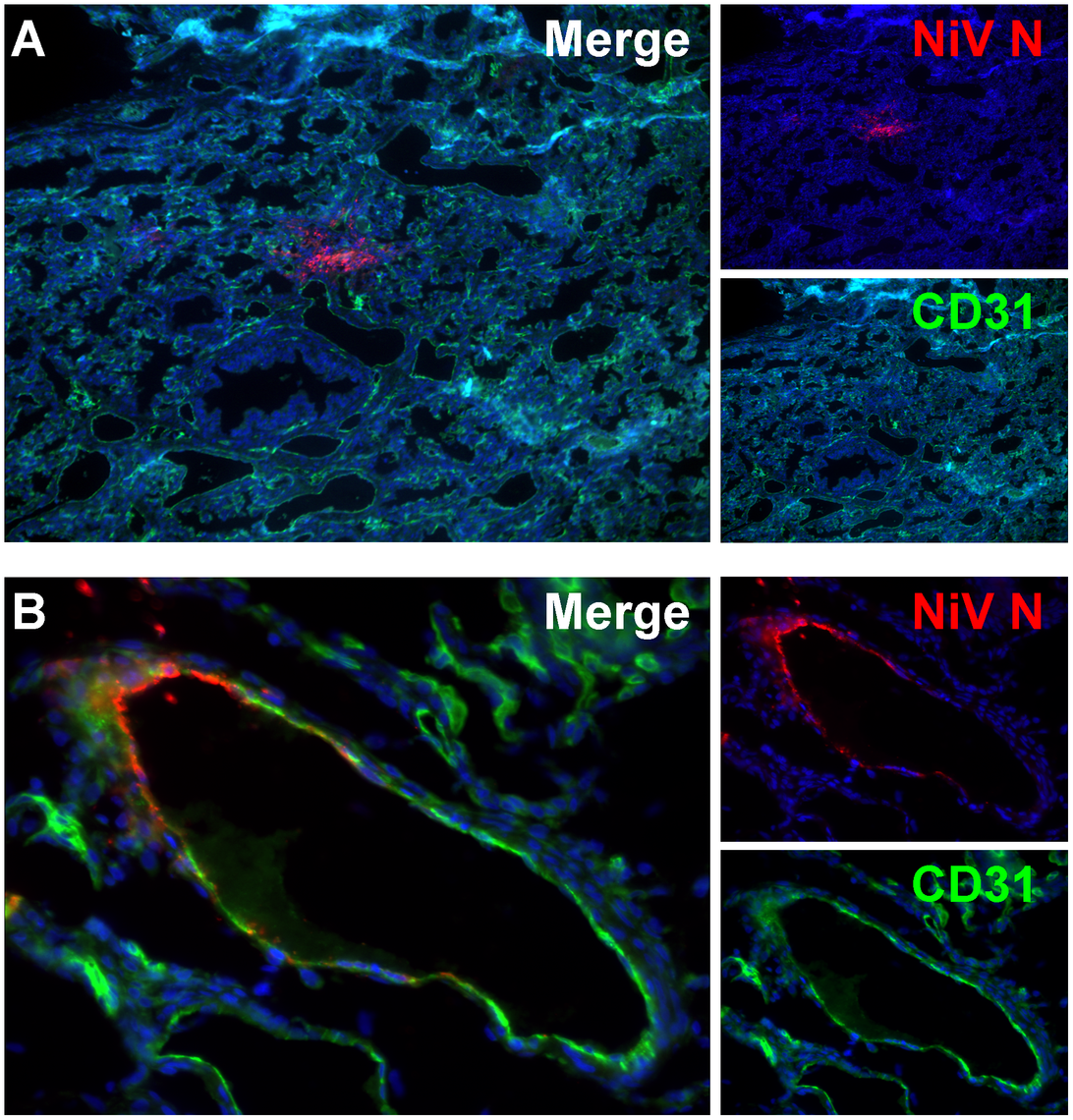 Cell tropism of Nipah virus in human lung xenografts.