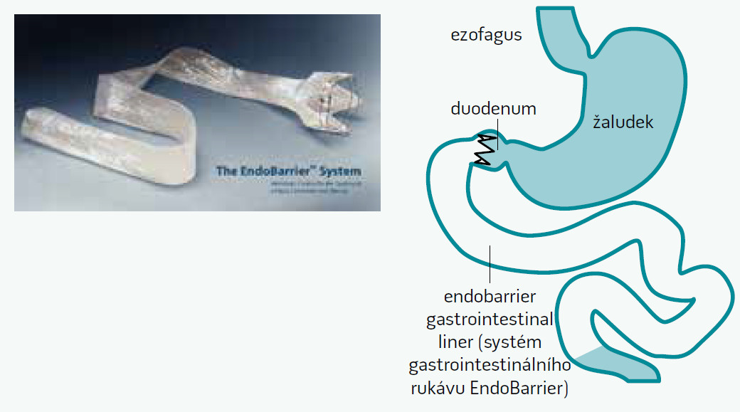 Endoskopicky implantovatelný duodeno-jejunální rukáv