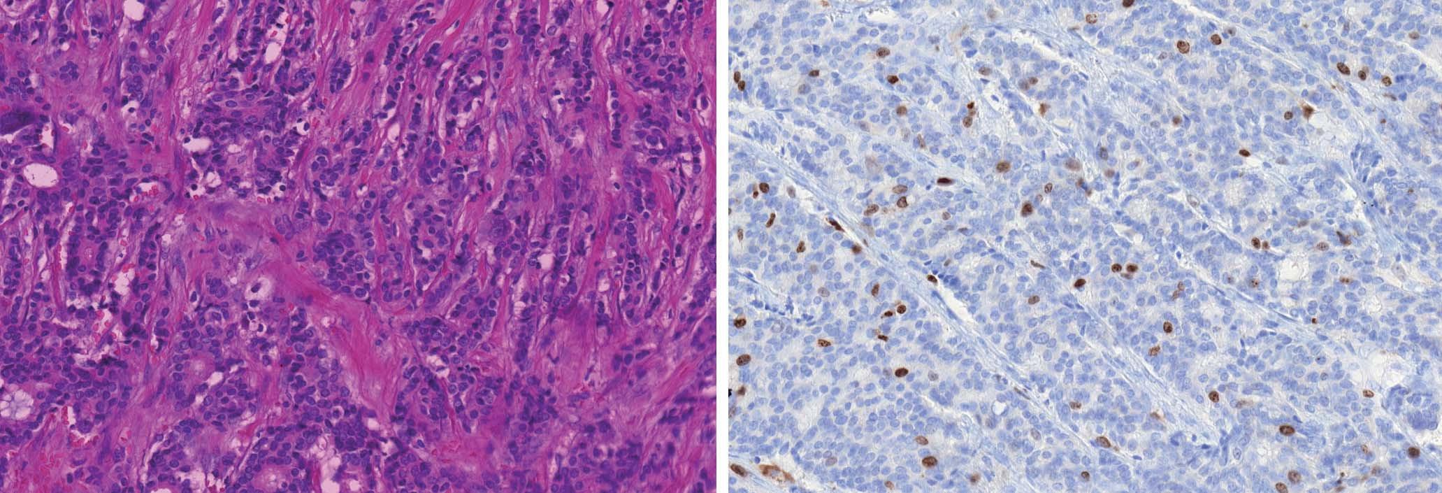 Grade 1 duktální karcinom (A). Luminální typ A charakterizuje pozitivní exprese ER/PR, nízká proliferační aktivita s MIB1 indexem ≤ 20 % (B), grade 1, a HER2/neu negativita.