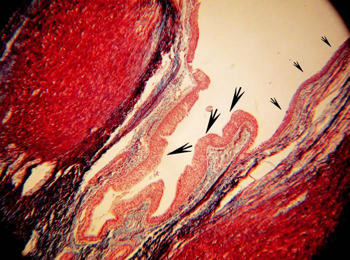 Přechod rohovatějícího dlaždicového epitelu hrany hlasové řasy (malé šipky) v respirační epitel (velké šipky) v oblasti přední komisury glottis.
