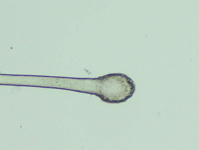 Kyjovitý bulbus telogenního vlasu ve světelném mikroskopu (zvětšení 40krát)